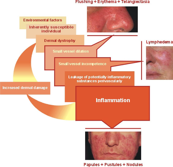 what causes rosacea