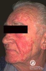 rosacee steroidienne traitement
